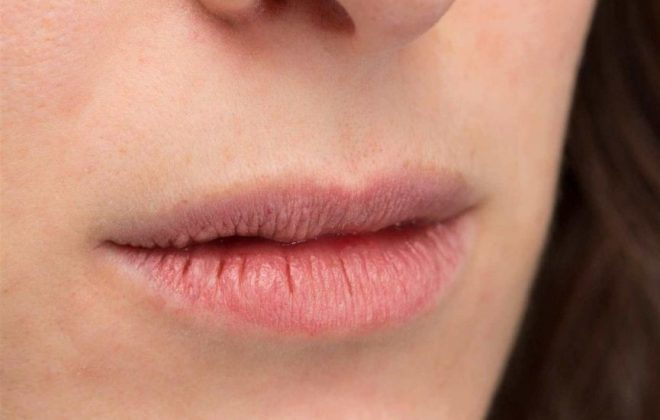 0 4 660x420 - خشکی دهان در ارتودنسی