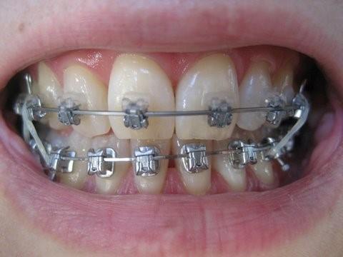 3 4 - خشکی دهان در ارتودنسی