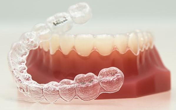 4 3 - خشکی دهان در ارتودنسی