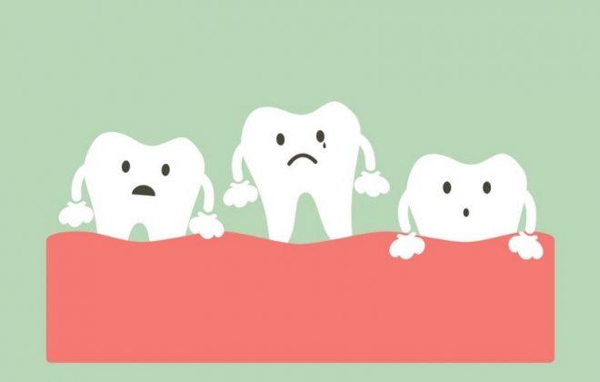 0 2 660x420 - لق شدن دندان ها در ارتودنسی