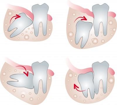 1 1 - آیا کشیدن دندان عقل طی درمان ارتودنسی ضروری است؟