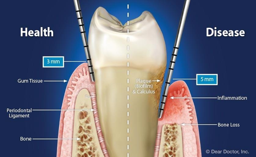 2 2 - لق شدن دندان ها در ارتودنسی
