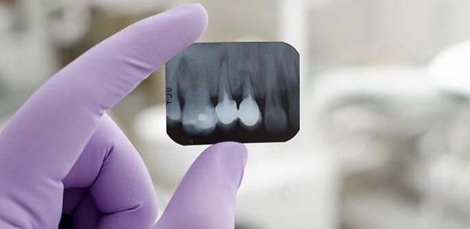 fry blog rootresorption e1456780002571 - لق شدن دندان ها در ارتودنسی