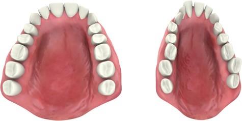 2 - عادات دهانی و مشکلات ارتودنسی