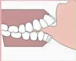 4 - عادات دهانی و مشکلات ارتودنسی