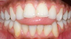 5 - عادات دهانی و مشکلات ارتودنسی