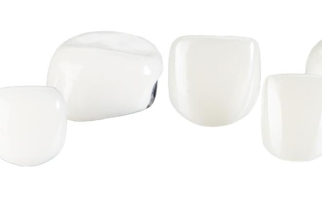 4 660x404 - روکش دندان کودکان