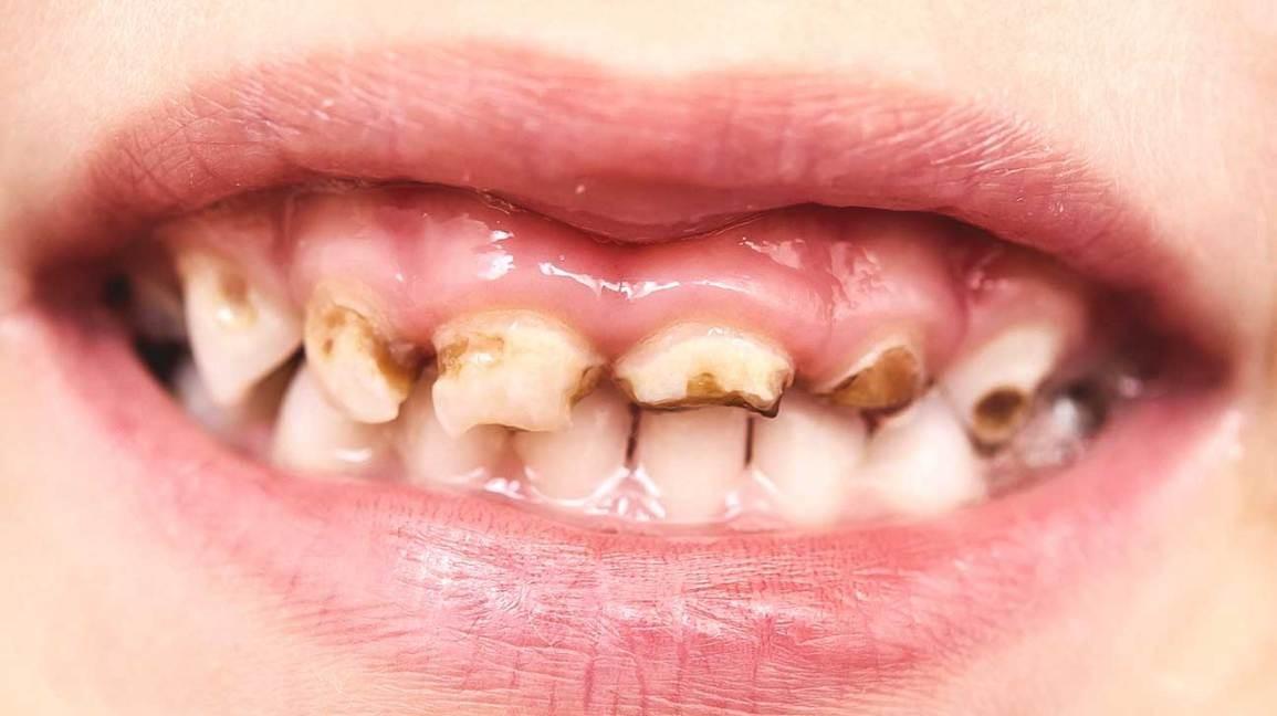 2 3 - پوسیدگی دندان کودکان