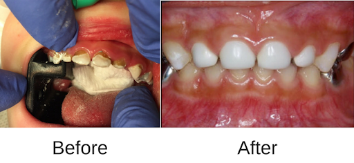 3 - پوسیدگی دندان کودکان