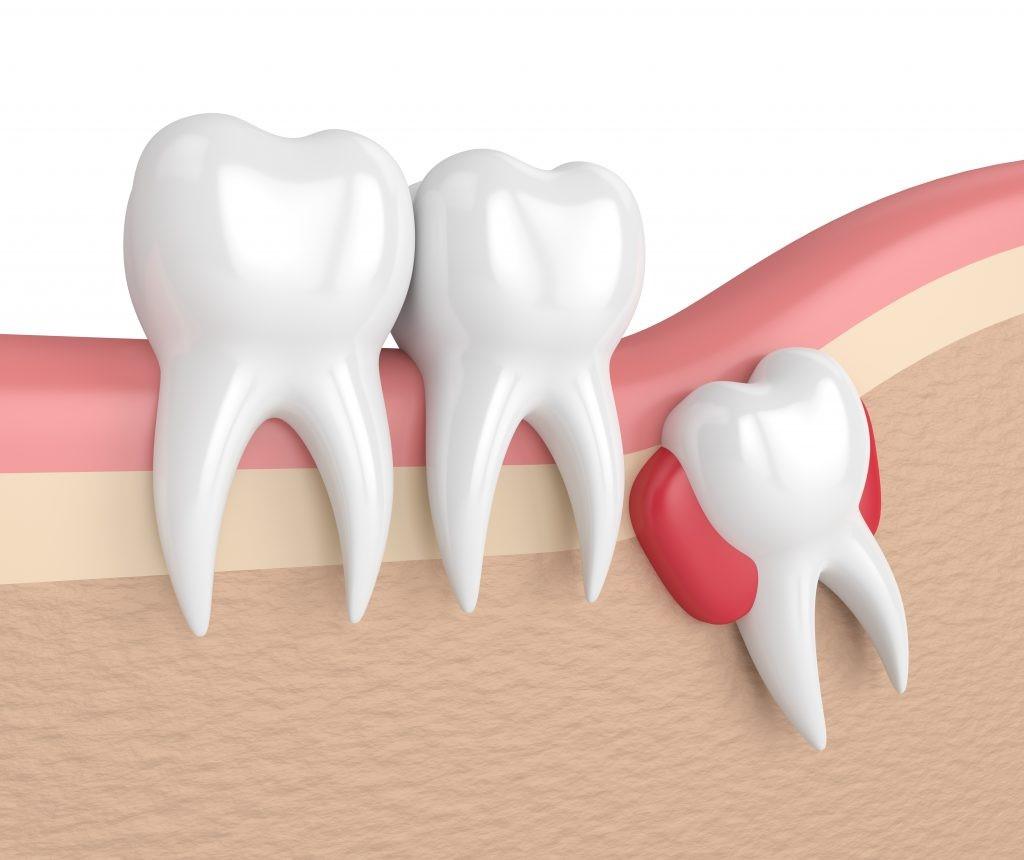 5 1 - دندان نیش نهفته در کودکان