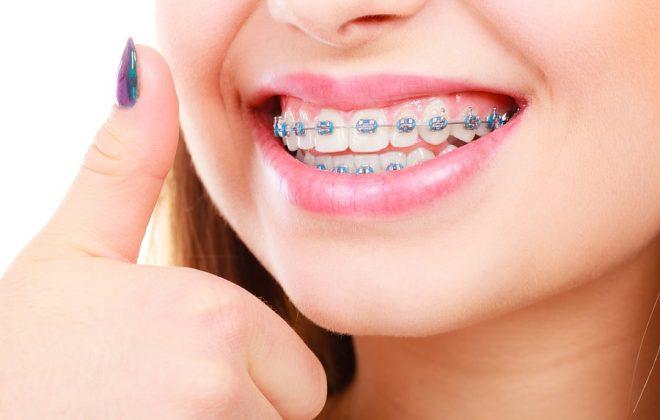 Center For Beautiful Smiles Braces Close Up 660x420 - مراقبت های درمان ارتودنسی ثابت