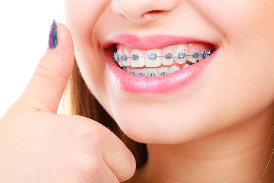 Center For Beautiful Smiles Braces Close Up - مراقبت های درمان ارتودنسی ثابت