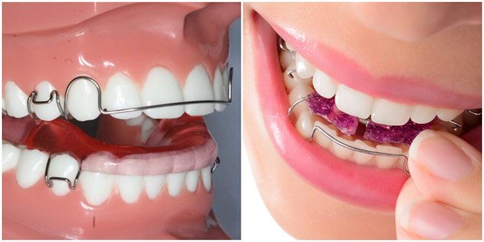 lower jaw removable orthodontics - دستور العمل نگهداری از پلاک متحرک ارتودنسی