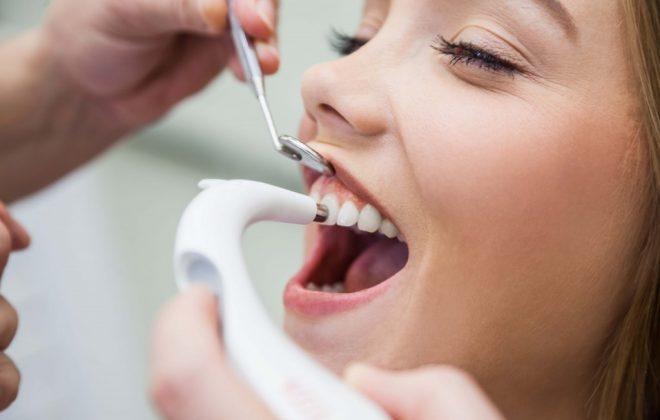 1 660x420 - پروفیلاکسی یا پیشگیری از بروز مشکلات دندانپزشکی