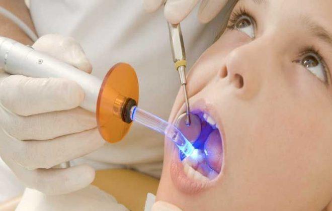 16 660x420 - پر کردن دندان کودکان
