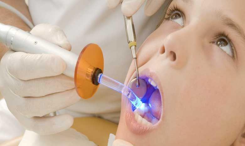 16 - پر کردن دندان کودکان