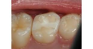 18 - پر کردن دندان کودکان