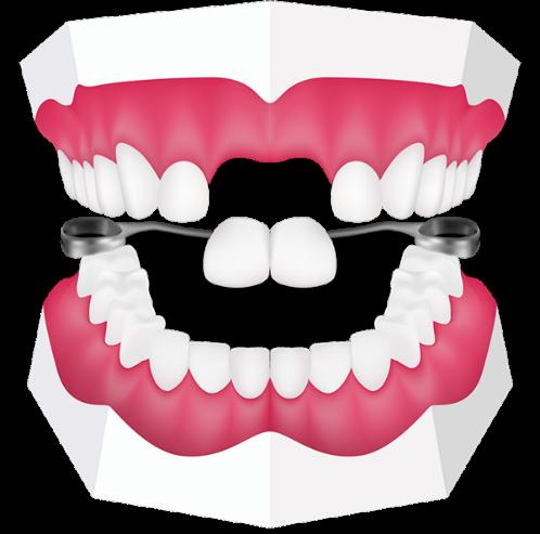 21 - دندان مصنوعی یا پروتز دندان کودکان