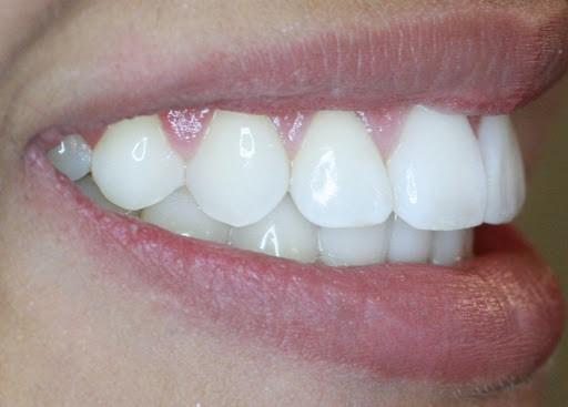 3 - مشکل جلو زدگی دندان پس از ارتودنسی