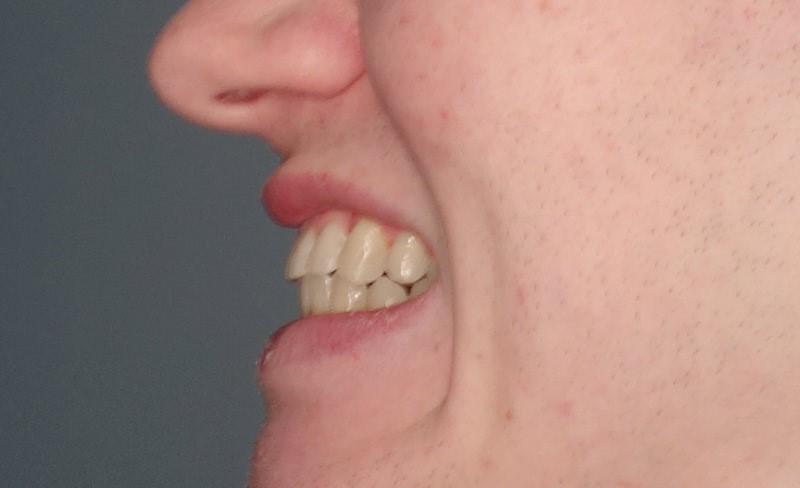 4 - مشکل جلو زدگی دندان پس از ارتودنسی