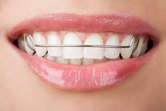 5 - مشکل جلو زدگی دندان پس از ارتودنسی