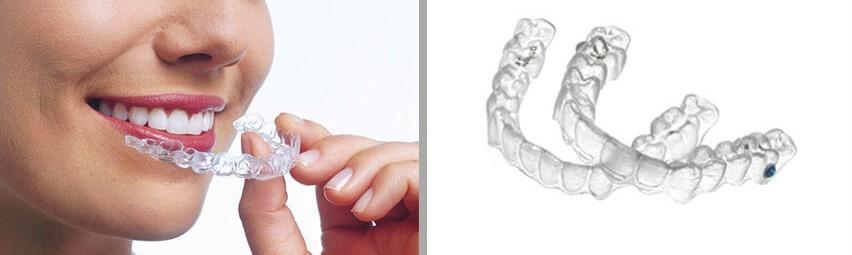 6 - مشکل جلو زدگی دندان پس از ارتودنسی