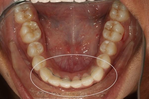 7 - مشکل جلو زدگی دندان پس از ارتودنسی