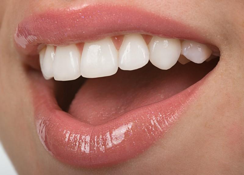 12 - باندینگ و کامپوزیت دندان