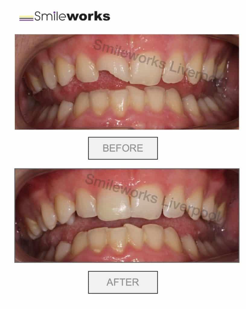 13 - باندینگ و کامپوزیت دندان