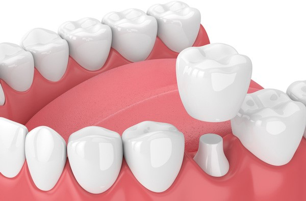 14 - آنچه باید در مورد روکش های دندانی بدانید