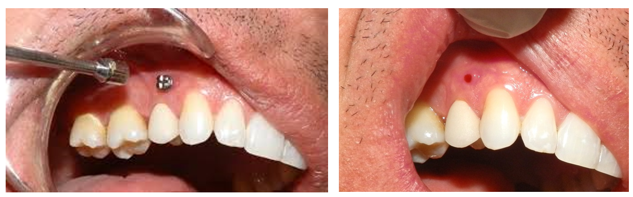 5 - بیهوشی و بی حسی در دندانپزشکی و ارتودنسی