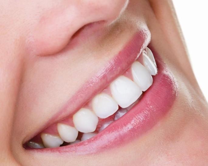 11 - آشنایی با روش های سفید کردن دندان