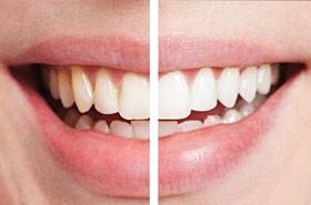 12 - آشنایی با روش های سفید کردن دندان