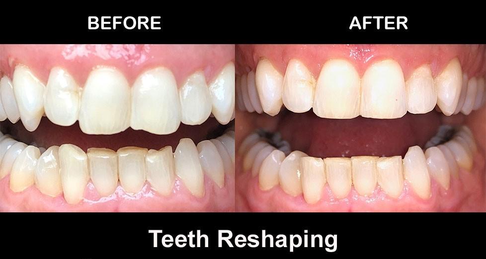 3 - کانتورینگ و تراش دندان ها