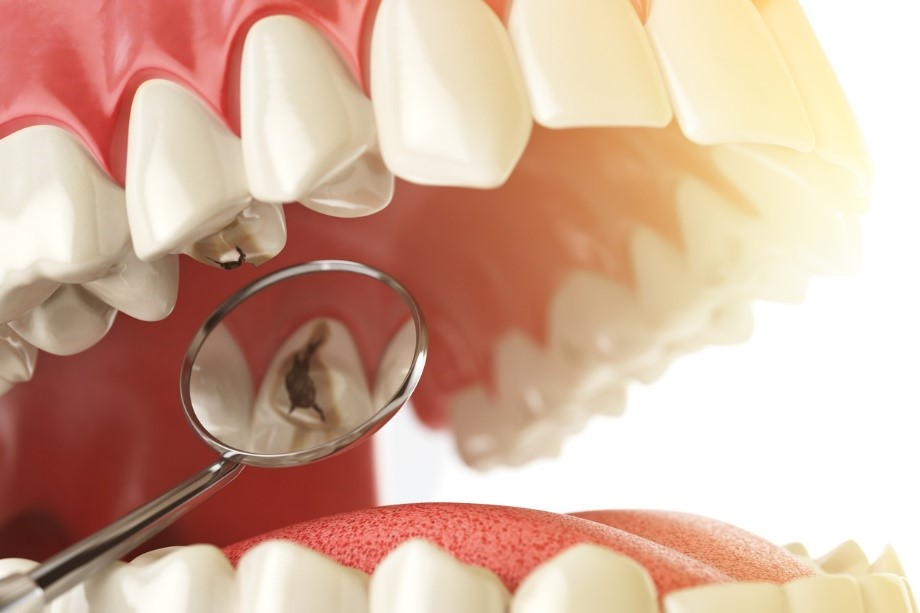 4 1 - آشنایی با روش های سفید کردن دندان