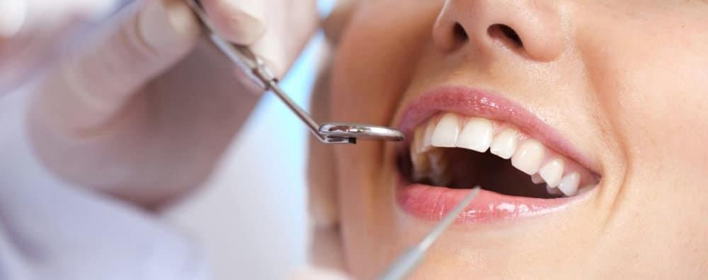 4 - کانتورینگ و تراش دندان ها