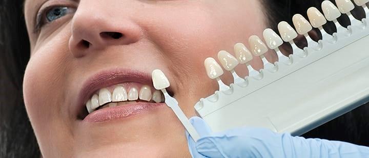 6 - آشنایی با روش های سفید کردن دندان