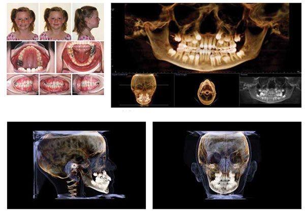 10 - مشکل عدم تقارن صورت و درمان آن با ارتودنسی