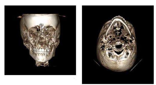 2 - مشکل عدم تقارن صورت و درمان آن با ارتودنسی