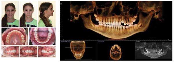 3 - مشکل عدم تقارن صورت و درمان آن با ارتودنسی
