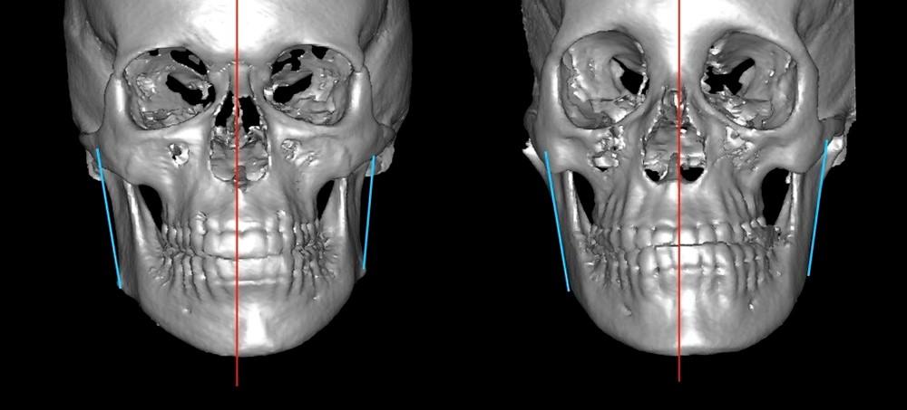 32 - مشکل عدم تقارن صورت و درمان آن با ارتودنسی