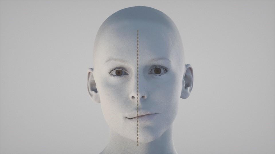 33 - مشکل عدم تقارن صورت و درمان آن با ارتودنسی