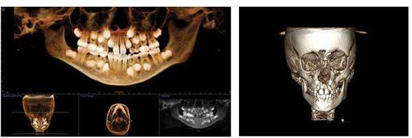 5 1 - مشکل عدم تقارن صورت و درمان آن با ارتودنسی