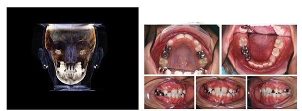 6 1 - مشکل عدم تقارن صورت و درمان آن با ارتودنسی