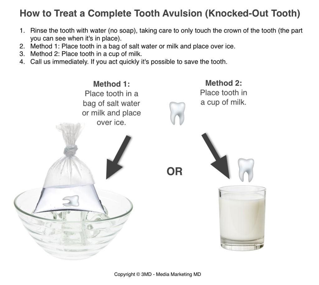 6 - شایع ترین آسیب دندان ها