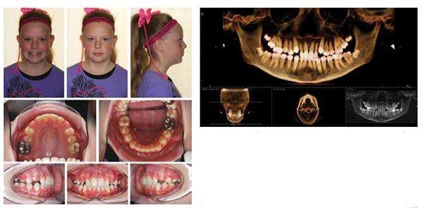 7 - مشکل عدم تقارن صورت و درمان آن با ارتودنسی