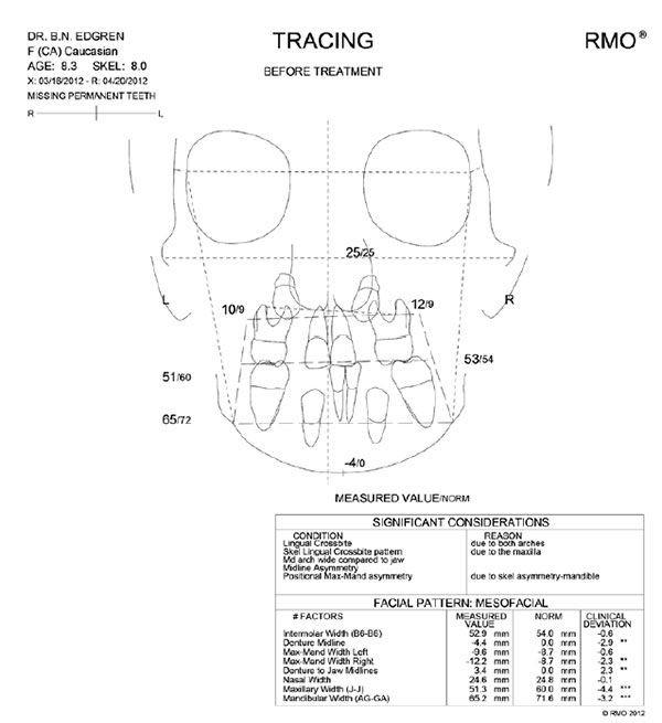 9 - مشکل عدم تقارن صورت و درمان آن با ارتودنسی