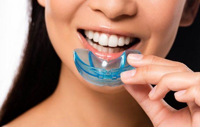 10 660x420 - آنچه لازم است راجع به محافظ دندان بدانید