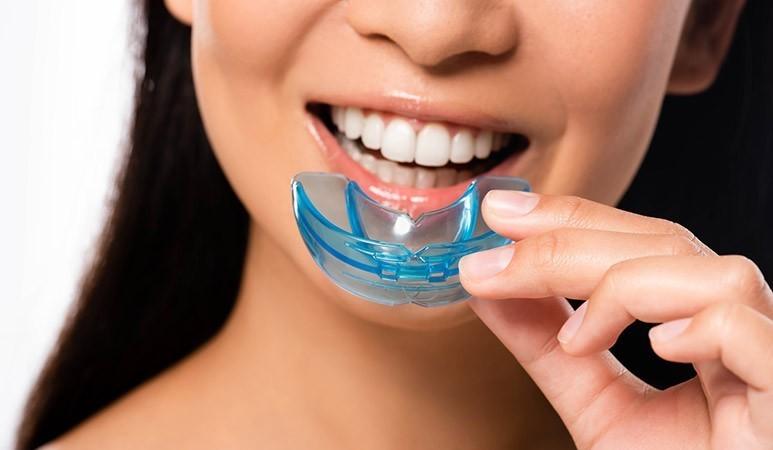 10 - آنچه لازم است راجع به محافظ دندان بدانید