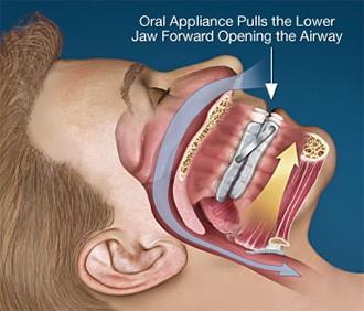 3 - آنچه لازم است راجع به محافظ دندان بدانید